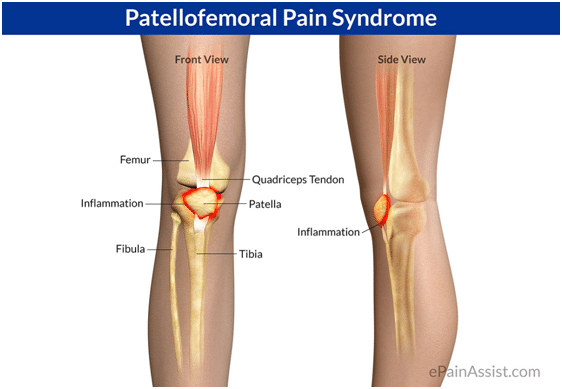 PFP-syndrome